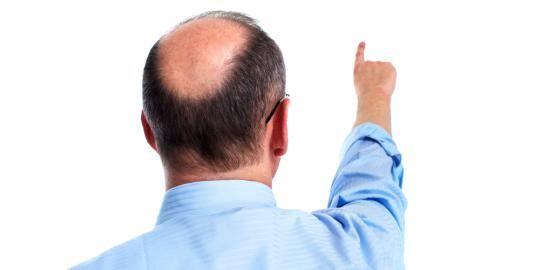 Obat Penumbuh Rambut Botak Tengah Cepat dan Alami