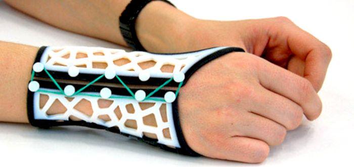 Loughborough University 3d printed arthritis splint CAD 3D Printing Industry