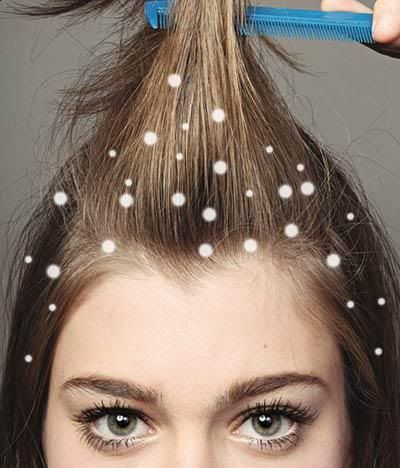 Receita caseira de shampoo anti caspa