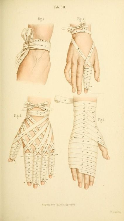 floresetmanus:  Manual of Surgical Bandages, Devices and Dressings (1859)