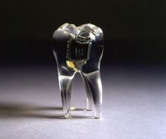 Auger - Loizeau, Audio Tooth Implant, 2001.