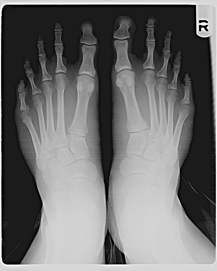 An x-ray showing Morton's Toe. Between 15 to 20 percent of humans have Morton's Toe. Although the name of the toe refers to the second toe of the foot, it would be more accurate to call the condition Morton's foot, as the problem is caused by the first metatarsal bone in the foot, not the toe, being shorter than its neighbor.