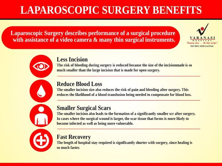 Laparoscopic surgery is the advanced surgical procedure that involves minimal incision and no scars. It can help you overcome problems like #obesity, #gallstones and several #hernia. #LaparoscopicSurgery