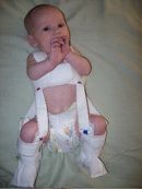 A baby wearing a Pavlik harness for treatment of hip dysplasia.