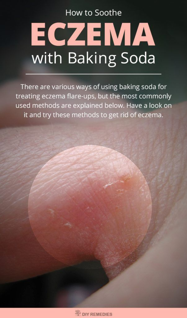 How to Soothe Eczema with Baking Soda - DIY Natural Home Remedies