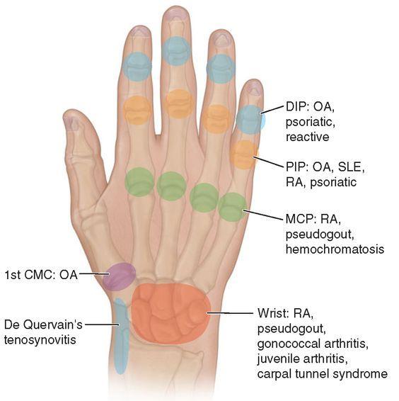elmiron osteoarthritis how to take