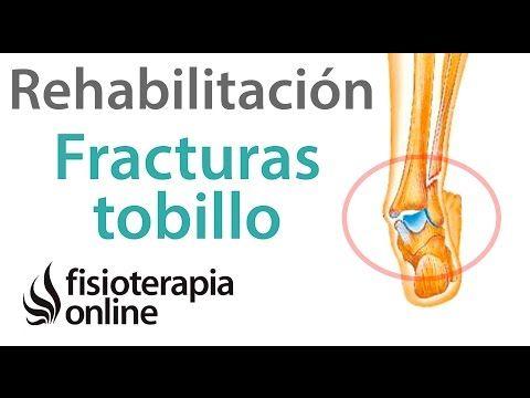 Rehabilitación de fracturas de tobillo con ejercicios, auto masajes y estiramientos - YouTube