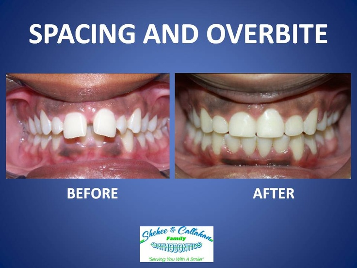 Braces before and after - spacing and overbite