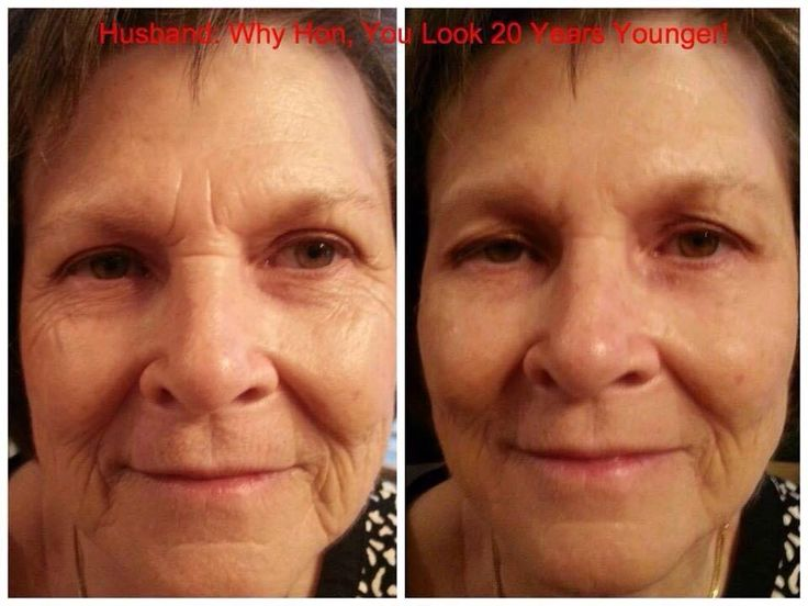 Instantly Ageless is an amazing new product, you will see results within minutes that will completely blow you away! Like my facebook page for videos and more www.facebook.com/JennsInstantlyAgeless
