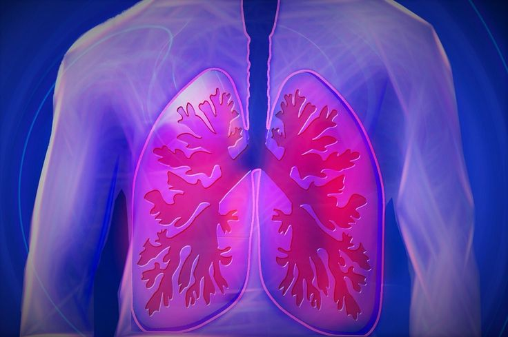 Recognizing and Understanding Mesothelioma | Say Healthy