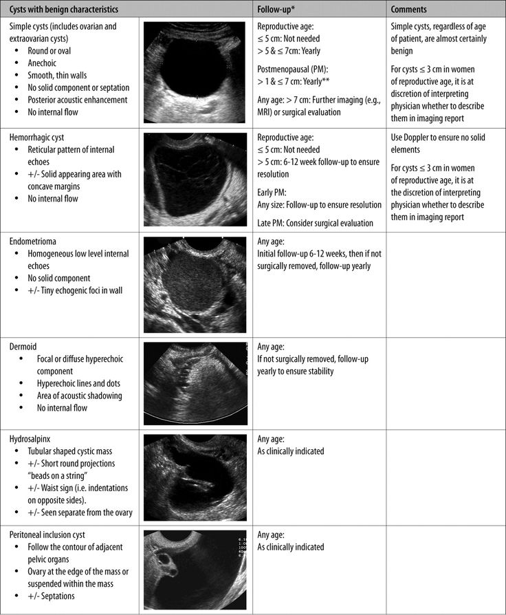 Ovarian cysts with begin characteristics. [ Reveals secret on how to remove ovarian cyst permanently within 2 months ! Click 'again' on this image after it appears to find out the details.. ]