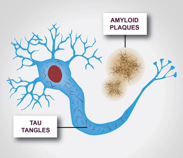 Tau normally acts as a molecular scaffold inside nerve cells, helping them to maintain order and structure and transport cargo along their long processes. In several forms of dementia, including Alzheimer's, frontotemporal dementia, corticobasal degeneration and progressive supranuclear palsy, tau starts to behave out of character. Our blog explores the role of the protein tau and its role.