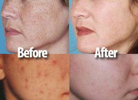 Salicylic Acid peel. I don't have this one yet, but I'll get it soon!!