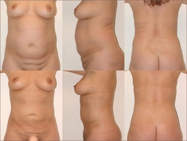 Belly/Waist Liposuction Before and After!