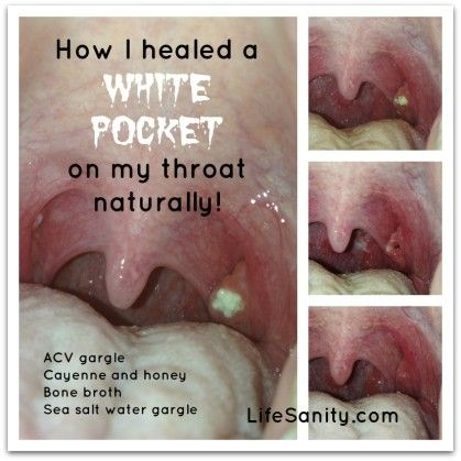 How I healed a white pocket on my throat naturally www.lifesanity.com