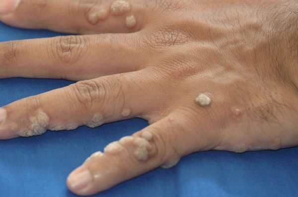 Common warts are characterized by the tiny, grainy growth which commonly occurs on the hands or fingers. It is sourced by a virus and is contagious.... http://www.natural-health-news.com/common-warts-symptoms-causes-risk-factors-diagnosis-and-treatment