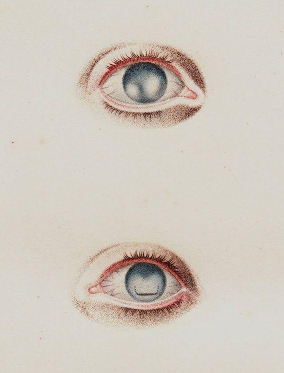 Impresión de ojos antiguos 1818, fina litografía de anatomía, cirugía del globo ocular, globo ocular, originales antiguos 198 años