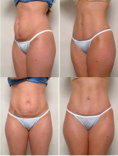 Loose skin after weight loss - Tummy tuck   http://www.advancedbmi.com/plastic-surgery-after-weight-loss-in-lebanon/tummy-tuck-or-abdominoplasty-in-lebanon/