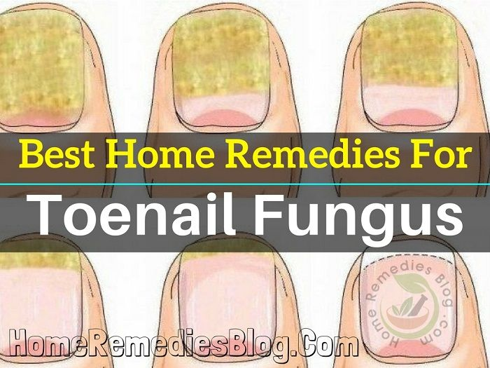 My Toenail Is Turning Yellow And Flaking Out What Is Happening After Pedicure Many People Find Themselves Exposed To F Toe Nails Toenail Fungus Nail Remedies