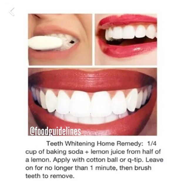 """Teeth whitening home remedy #foodguidelines"""