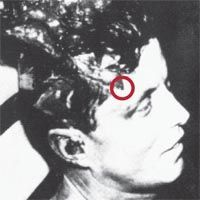 Kennedy Autopsy Photographs X-rays   Autopsy Photos Of Jfk Jr