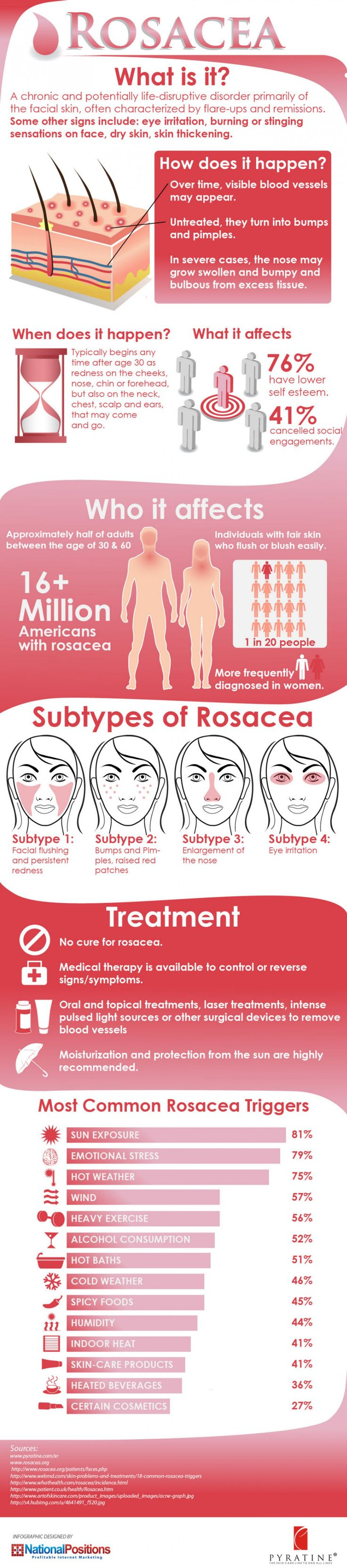 Rosacea is a chronic sensitive skin condition often involving inflammation of the cheeks, nose, chin, and forehead. The skin may experience sensitivity, excessive flushing, persistent redness, broken capillaries or breakouts. Decrease redness/inflammation and increase hydration are key to control Rosacea.