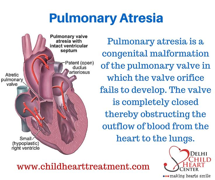 #Pulmonaryatresia is a form of heart disease that occurs from birth (#congenitalheartdisease) For more information Visit us :  http://www.childhearttreatment.com/common-conditions/pulmonary-atresia/  Mail us : drkohlivikas@gmail.com