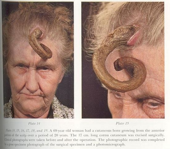 It doesn't happen very often, but people do grow horns. They're called cutaneous horns and they are the result of a wide range of epidermal lesions. According to the World Journal of Surgical Oncology, cutaneous horns appear in men over 55 and women over 65. Rare as these cases may be, cutaneous horns have been around for quite some time, with the first documented case appearing in the 1500s.