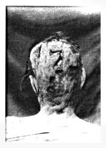 Sarah Anthony Borden, mother of Lizzie Borden, post autopsy