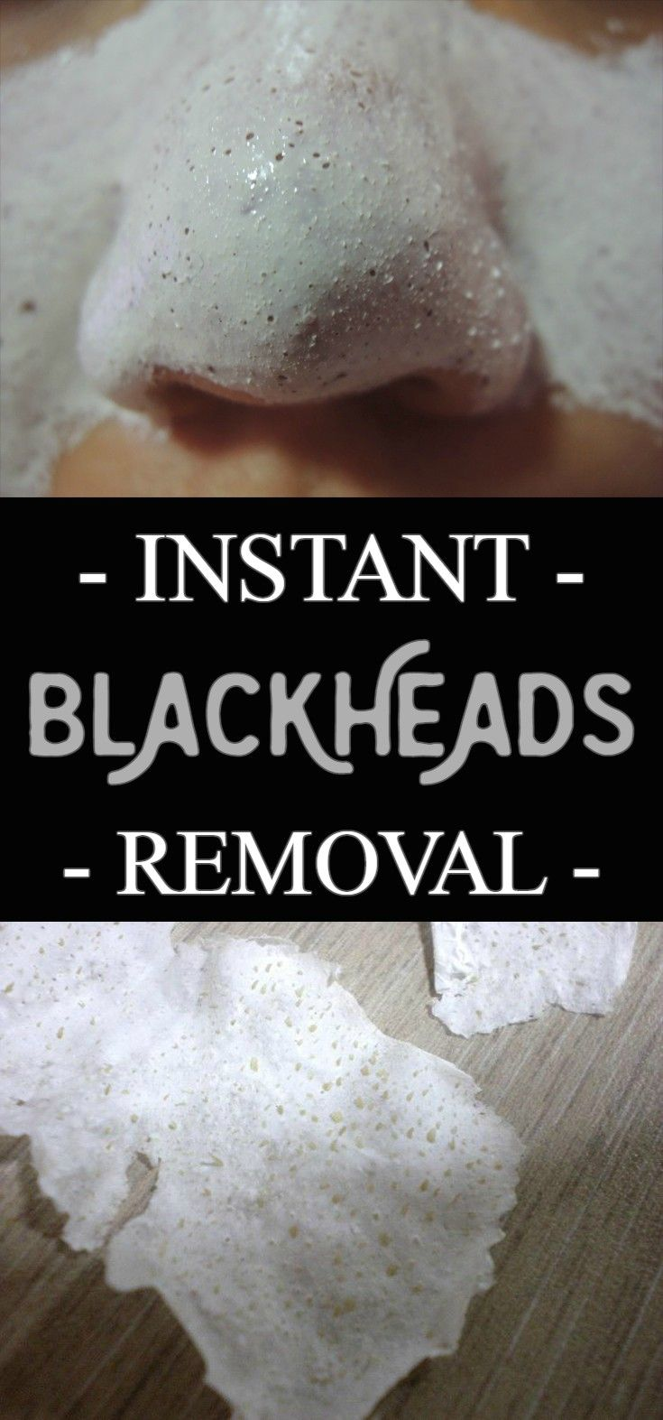 Instant blackheads removal   BestWomenTips com