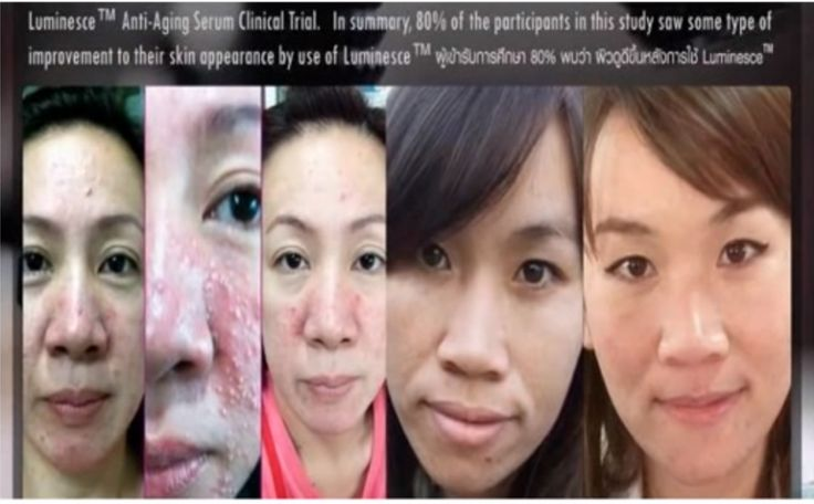 Discover this unique one of kind anti-aging product derived from adult stem cells. #antiaging #jeunesse #luminesce http://www.islandfab246.jeunesseglobal.com/