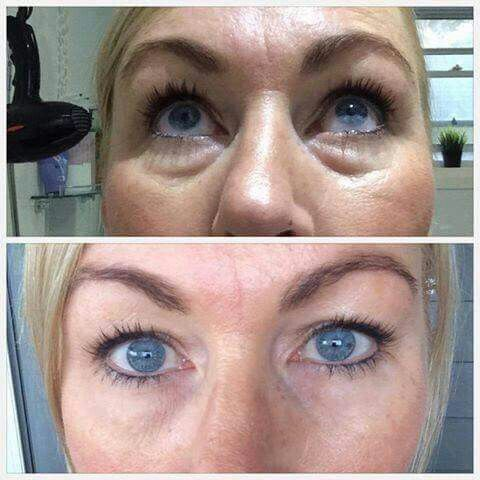 Instantly ageless.... in just under 5 minutes, it works naturally with your body to help diminish lines and wrinkles! Wow! Loving this product!  www.inthismoment.jeunesse.com