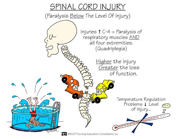 Spinal Cord Injury. Remember: autonomic dysreflexia may be precipitated by a full bladder; life-threatening complication characterized by severe hypertension (also severe HA and profuse sweating); must be treated promptly to prevent a stroke. 1. Elevate HOB 2. Check for noxious stimulant (ie kinked foley).