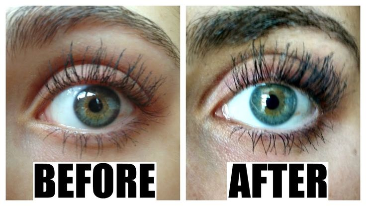 How to grow eyelashes FAST! | Latisse Review, Tips, Before ...