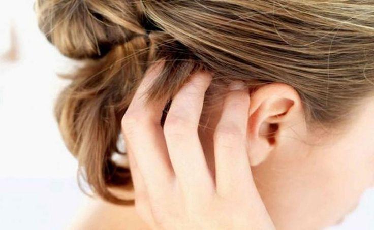 Шелушится кожа головы