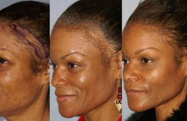 Because of the many hair trends today, some women end up suffering from a receding or thinning hair line.