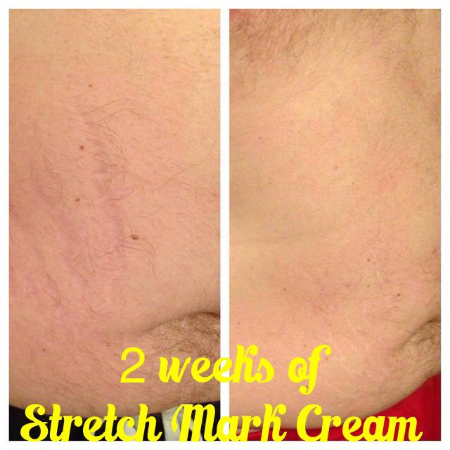 25+ Best Ideas About White Stretch Marks On Pinterest
