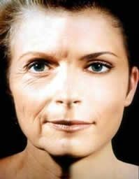 Methods To Perform Your Own Homemade Facelift Via Facial Stimulation Workouts