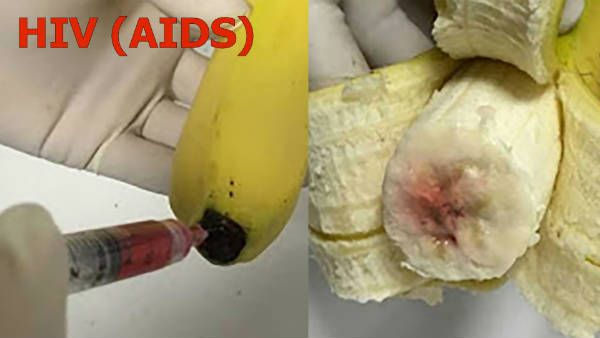 Warning! Infected Bananas With AIDS Virus!