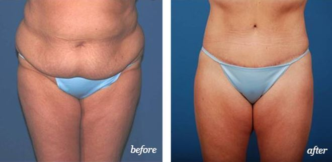 A #lowerbodylift targets the abdominal area, butto…  #AestheticButtockSurgical…
