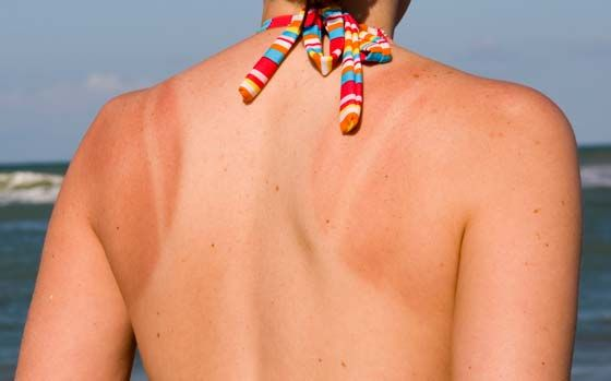 how to get rid of the itch from a sunburn
