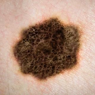 Changes in skin moles http://www.prevention.com/health/ignored-cancer-symptoms/10-changes-in-skin-moles