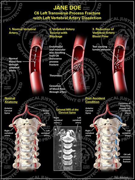carotid vertebral artery dissection The mortality rate from carotid and vertebral artery dissection is less than 5%(4), with more than 75% of those having a stroke,.