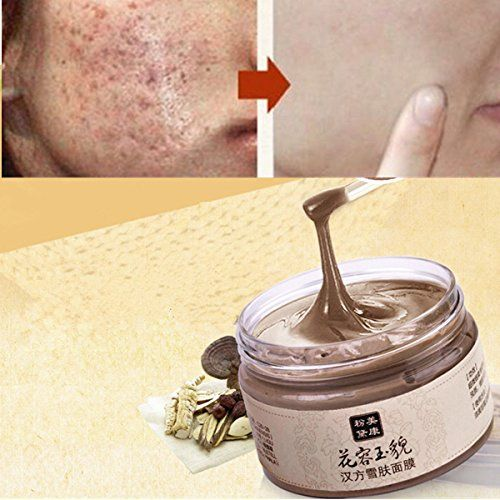 Facial Mask Acne Scars Freckle Remover Face Care Treatment Blackhead Cleansing -- Click image to review more details.