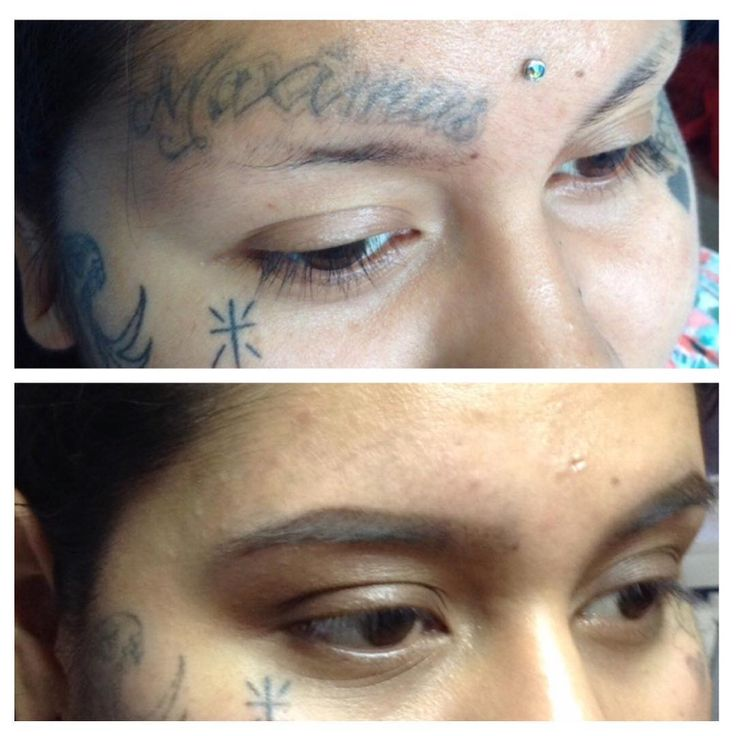 Tattoo Removal Before and After: How to Get Rid of Tattoo? Cream , Costs... Check more at http://tattoo-journal.com/tattoo-removal-how-to-get-rid-of-tattoo/