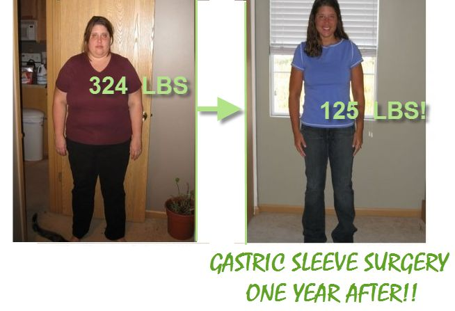 Gastric sleeve surgery has  worked some miracles for  some obese people.  This before and ofter of this VSG is  really just amazing.  #gastricsleeve # VSG
