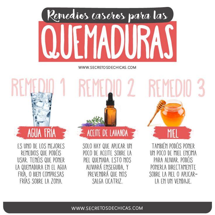 Remedios-caseros-para-las-quemaduras_web