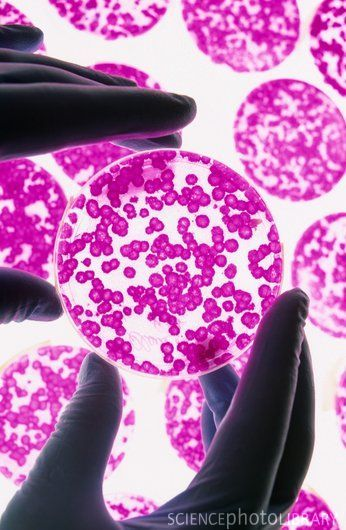 Stem cell research. Cultures of stem cells growing in petri dishes. Stem cells are pluripotent, they are able to differentiate into any of the cell types of the body.  Source: sciencephoto.com