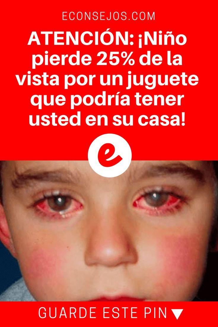 Apuntador laser | ATENCIÓN: ¡Niño pierde 25% de la vista por un juguete que podría tener usted en su casa!