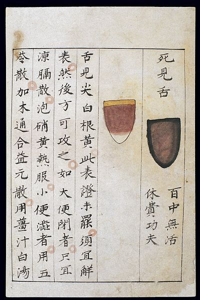 400px-C14_Chinese_tongue_diagnosis_chart_Wellcome_L0039597.jpg (400×600)